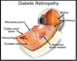 Diabetic Retinopathy – Another angle:  Is this the start of new therapies for retinopathy? Diabetic retinopathy is a complication of uncontrolled diabetes that leads to impaired vision and blindness among people with  diabetes. High blood glucose levels result in the abnormal development of tiny blood vessels in the eye. Research has shown that tight glycaemic control reduces the development and progression of diabetic  retinopathy.