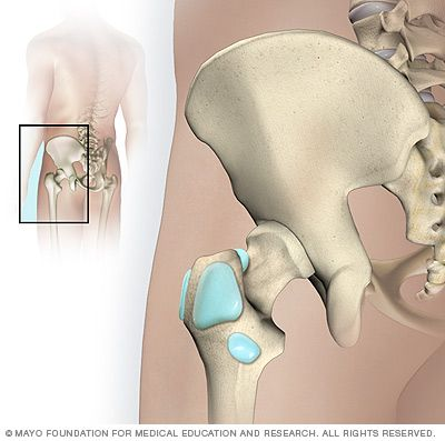 Hip bursae - Mayo Clinic. Got this going on right now.  Painful!