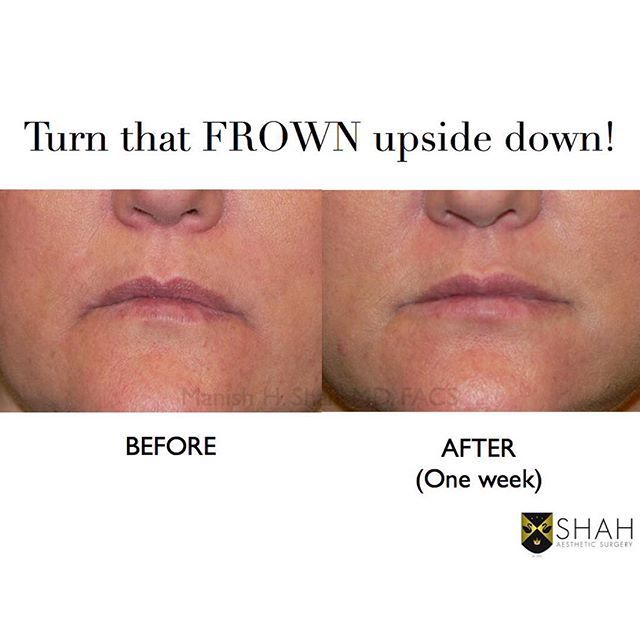 Holidays got you down?  Turn that frown upside down with my Luscious Lips special!  Venus Viva RF skin tightening of the lips, Venus RF #microneedling of lips and mouth, Restylane-L 0.5cc to lips, and Restylane Lyft 1.0cc to corners of the mouth $1300 ( $250 savings)  Call 303-708-8234 to schedule!  #denver #seattle #portland #sanfrancisco #sanjose #losangeles #beverlyhills #sandiego #dallas #houston #chicago #boston #nyc #washingtondc #atlanta #miami #london #vancouver #alberta #toronto…