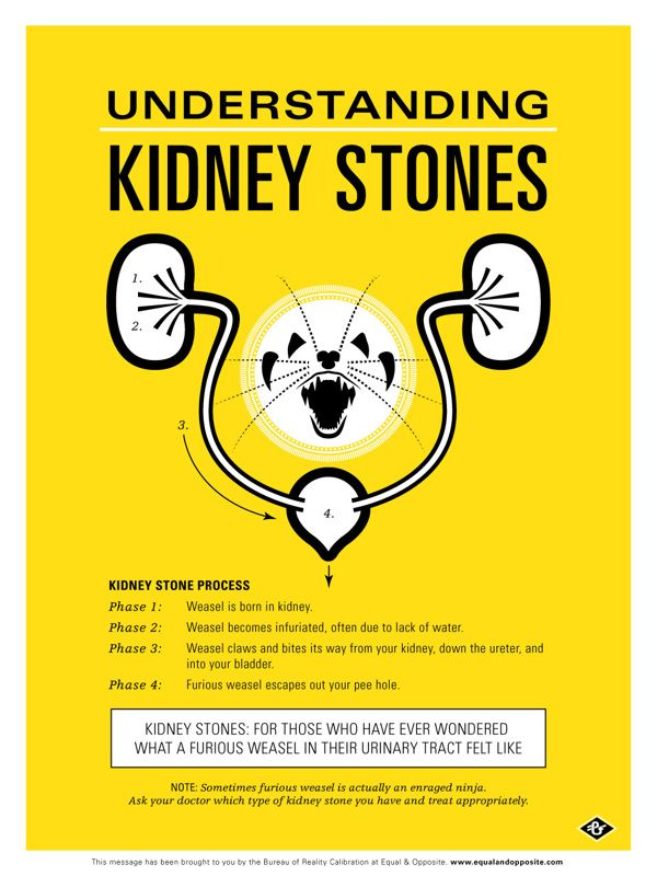 Understanding Kidney Stones — Medical Poster  Digital Art, Graphic Design, Illustration