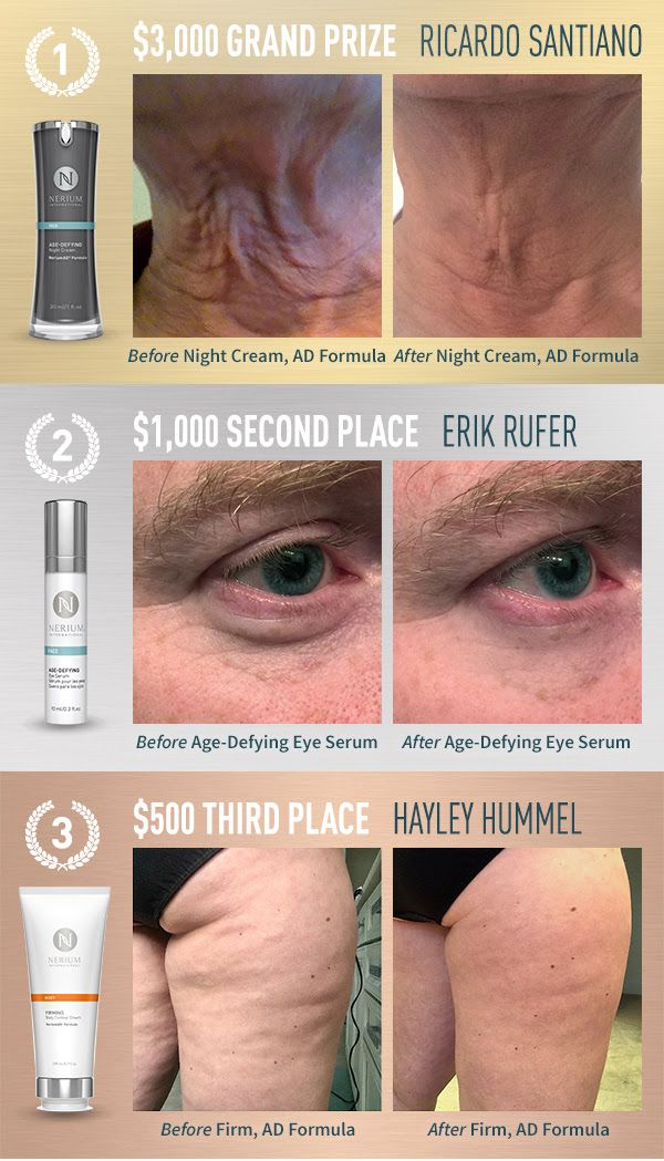 Nerium 90 day Challenge Results. The results are real you can be a better you.