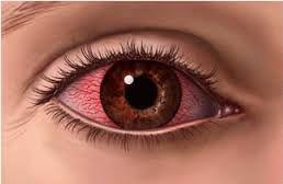 Tratamiento para la conjuntivitis alérgica