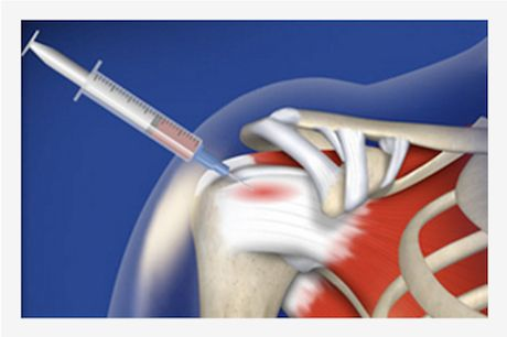 Platelet Rich Plasma Therapy | PRP Injections Treat a Variety of Pain