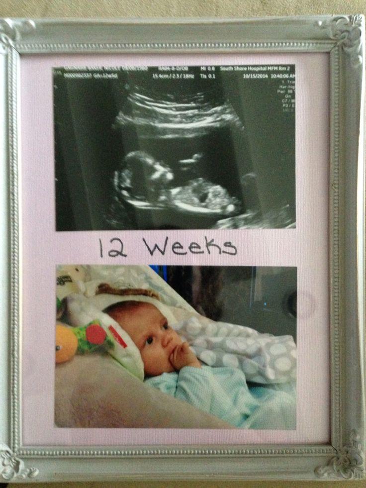12 week ultrasound vs 12 week old baby!