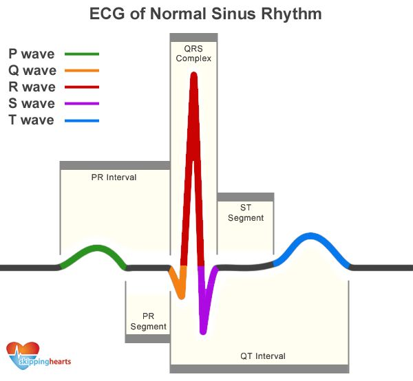 Sinus Arrhythmia: BPM increases during inhale, decreases during exhale. Inhale is stimulating, exhale is calming.