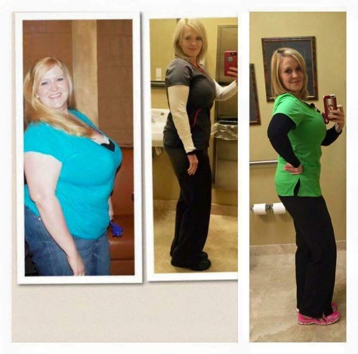 So what if you started Plexus 2 years ago? Where could you be with your health today? Rachel Cash Dean did, and just look at her now. The first pic was 10/2013, the last one was a few days ago. It ...