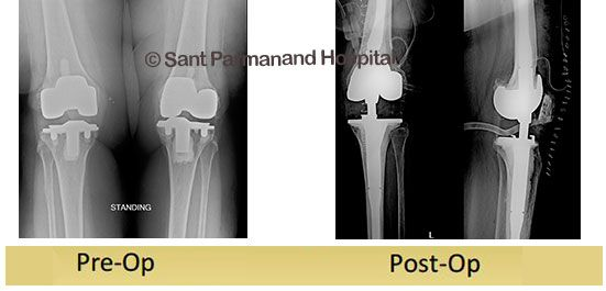 70 year old female known case of diabetes and hypertension had underwent bilateral total knee replacement 11 years ago (elsewhere). Both dislocations were managed in hospital elsewhere. She came to our OPD with complaints of instability left knee joint and pain.Rotating hinge knee prosthesis was used after removing the previous implant. Patient is asymptomatic and is normally bearing weight on the left leg.
