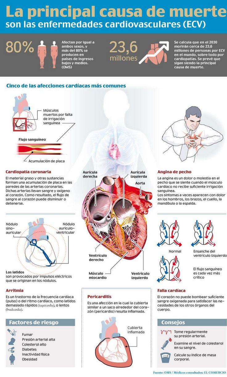 #Salud: La principal causa de muerte son las enfermedades cardiovasculares (ECV). Las EVC afectan por igual a ambos sexos, y más del 80 por ciento se producen en países  de ingresos bajos  y medios según la OMS.