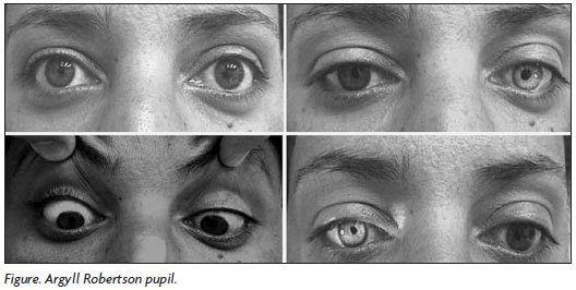 """Argyll Robertson pupils - """"Prostitute's Eye"""" because of the association with tertiary syphilis, are bilateral small pupils that constrict when the patient focuses on a near object (they """"accommodate""""), but do not constrict when exposed to bright light (they do not """"react"""" to light)."""