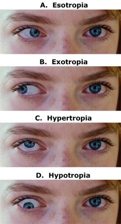 Strabismus is a visual problem in which the eyes are not aligned properly and point in different directions. One eye may look straight ahead, while the other eye turns inward, outward, upward, or downward. The eye turn may be consistent, or it may come and go. Which eye is straight (and which is misaligned) may switch or alternate.