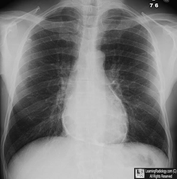 Constrictive pericarditis. (Pericarditis constrictiva) Fuente: Learning Radiology.