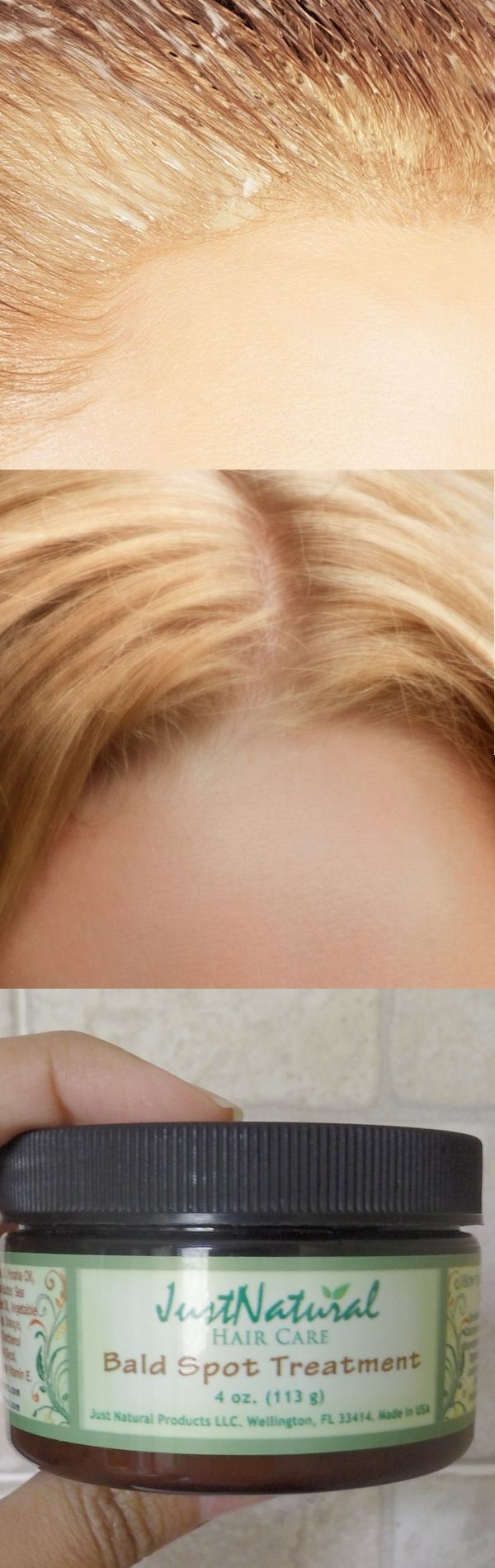I'm 42 yrs old and have hair all over my head but it's very fine and thin -ponytail the size of a small pencil. This cream was, truly, almost miraculous. My ponytail isn't really bigger but my hair looks significantly thicker and fuller. Even the woman who cuts my hair noticed a difference, as have friends and relatives.