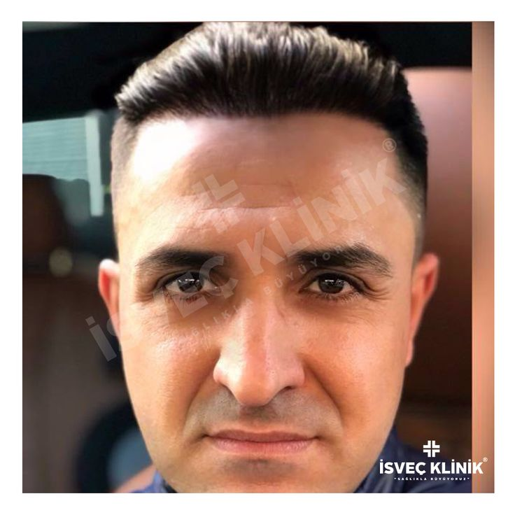 #haartransplantation #haartransplant #hairtransplantation #turkiye #beardtransplant #dubai #hairtransplant #trapiantofue #istanbul #trapiantocapelli #sacekimi #hairtransplantation #saçekimi #fue #fuesaçekimi #hairtransplantationturkey  #saçekimi#hairtransplantation #hairtransplant#haartransplantation #greffe#greffedecheveux  #زراعة_الشعر #زراعة_الشعر_في_تركيا_اسطنبول #زراعة_الشعر_في_تركيا_اسطنبول#إسطنبو