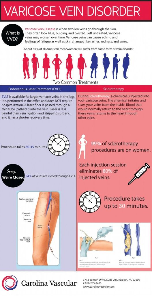 Infographic on varicose vein disease and the two main treatment options, sclerotherapy and endovenous laser therapy.