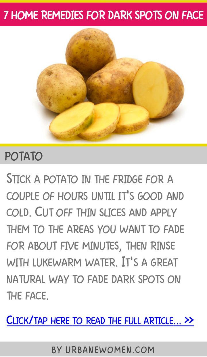 7 home remedies for dark spots on face - Potato
