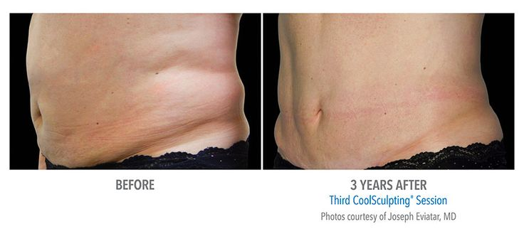 Loose tummy fat the CoolSculpting way. Freeze fat away and be left with a flatter slimmer you.  You can get great natural looking results, to help you reach your dreambody.