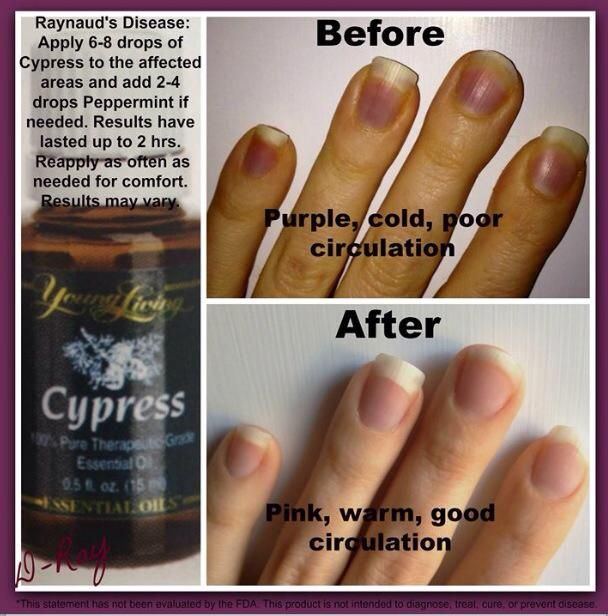 use Cypress essential oil for Raynaud's disease message me to buy wholesale & get a free gift