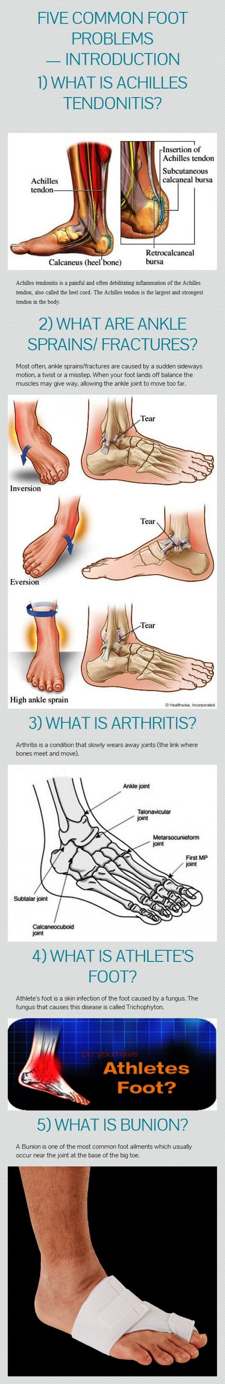 #Infographic - Five common foot problems: 1. Achilles tendonitis; 2. Ankle sprains/fractures; 3. Arthritis; 4. Athlete's foot; 5. Bunion. #orthotics #FootOrthotics #CustomFootOrthotics #arthritisinfographic