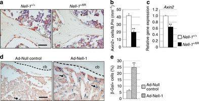 Gli scienziati di UCLA rivelano che la proteina NELL-1 stimola un efficace formazione ossea attraverso la capacità rigenerativa delle cellule staminali. Questi risultati preclinici potrebbero un giorno avere un impatto sullo sviluppo di un trattamento...