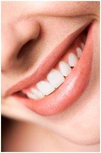 Tandblegning Struer | Blegning af tænder
