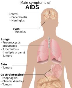 What are the signs and symptoms of HIV/AIDS?