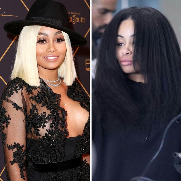 Curious to know what celebrities' hair looks like under their wigs, weaves, and extensions? See what celebs' real hair looks like!