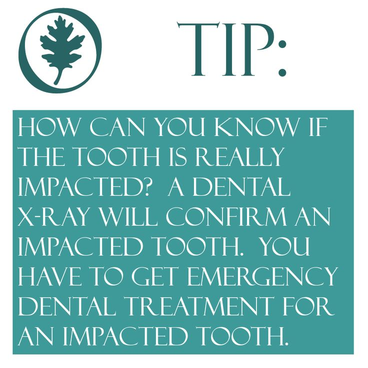 Emergency Dentistry daily insight: How can you know if the tooth is really impacted?  A dental x-ray will confirm an impacted tooth.  You have to get emergency dental treatment for an impacted tooth