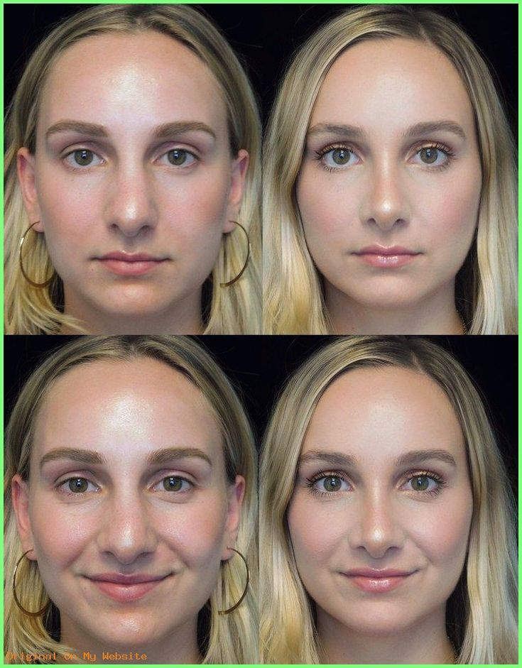 Rhinoplasty Before And After | Before-and-after photos of scarless rhinoplasty patient –  #rh…