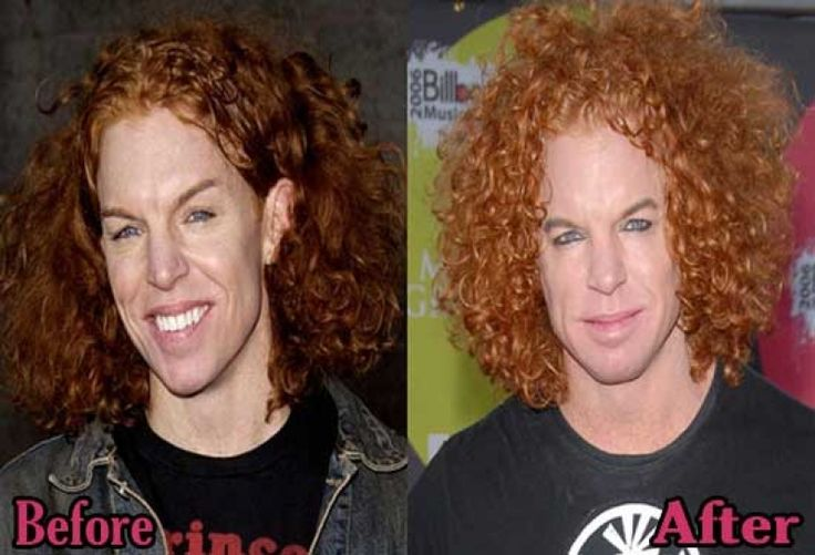 Carrot Top Before And After carrot top plastic surgery before and after photos top piercings