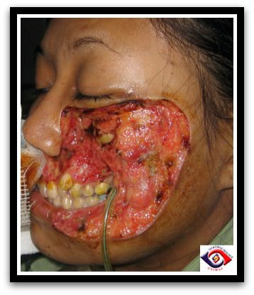 Strep throat wiki