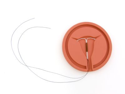 Young Woman Sues Bayer Over Mirena IUD Problems