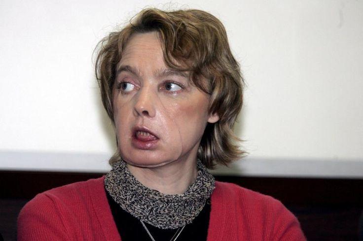 #Transplantationen: Erste Frau mit Gesichtsimplantat stirbt mit 49 Jahren - DIE WELT: DIE WELT Transplantationen: Erste Frau mit…