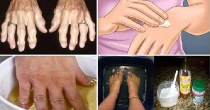 Use Este Remédio Natural Para Artrite E Se Livre Da Dor De Uma Vez Por Todas!