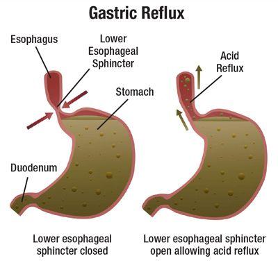 the 25+ best reflux symptoms ideas on pinterest | gerd symptoms, Skeleton