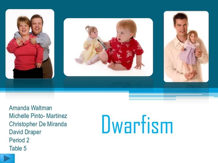 48 best images about Dwarfism on Pinterest | Primordial ...