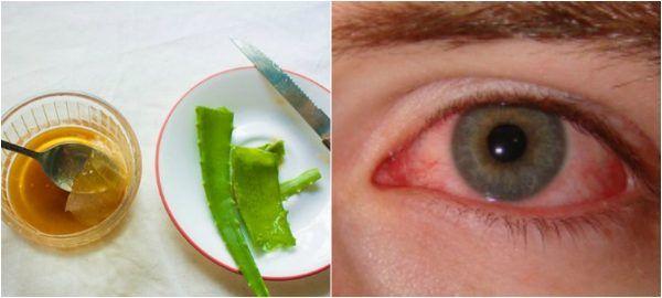 Алоэ — настоящее спасение для тех, кто страдает от проблем со зрением. Это средство — настоящая витаминная бомба для глаз! Может успешно применяться для лечения катаракты, боли в глазах, а также воспалении век.