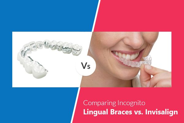 Which invisible braces are right for you? Comparing Incognito Lingual #Braces vs. #Invisalign.