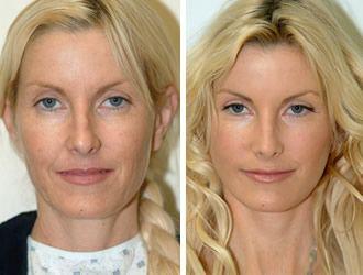 20 Best Images About Plastic Surgery Facelift On Pinterest