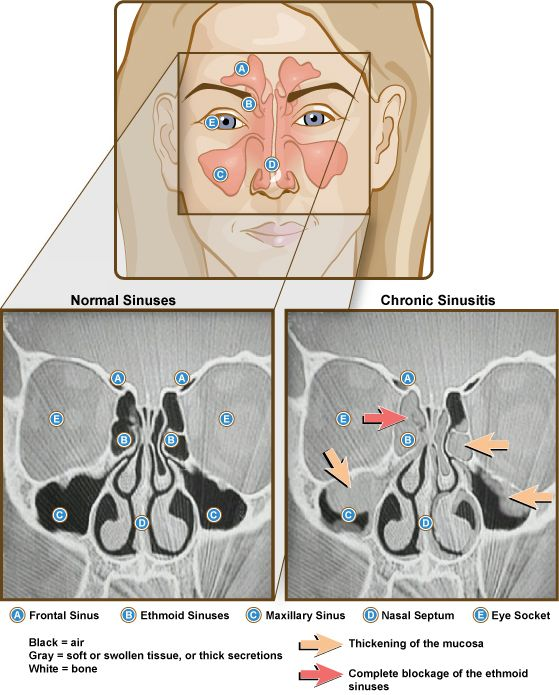 Front view illustration and side-by-side CT scans of normal and chronic sinusistis. Labeled: frontal sinus, ethmoid sinuses, maxillary sinus, nasal septum, eye socket. Credit: NIAID