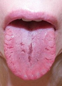 What Your Tongue Tells You About Your Health