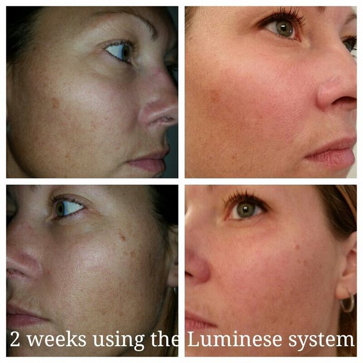 2 weeks using the Luminesce Line