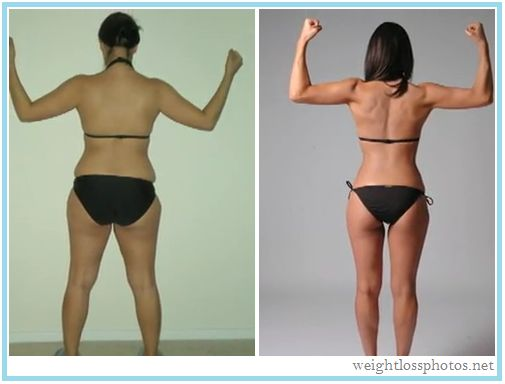 Weight loss after stopping depo shot picture 2