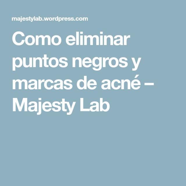 Como eliminar puntos negros y marcas de acné – Majesty Lab