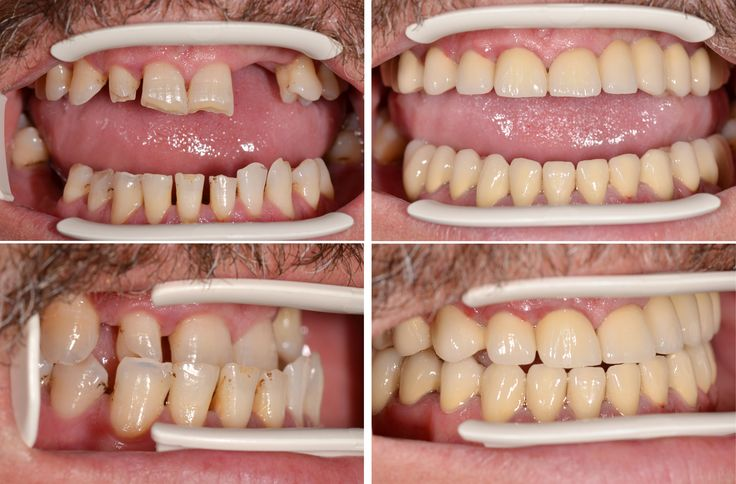 Before-after pictures of full mouth restoration from our dental clinic in Transylvania.