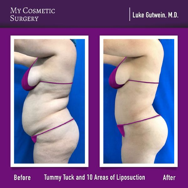 Before and after of Tummy Tuck and Liposuction surgeries performed by plastic su…