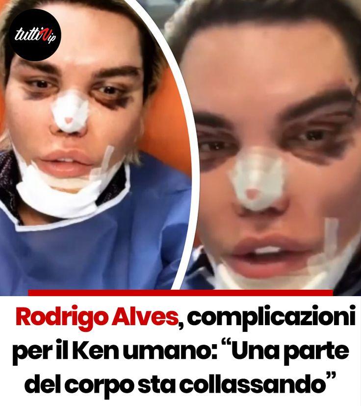 """Rodrigo Alves, complicazioni per il Ken umano """"Una parte"""