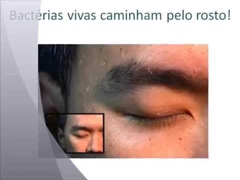 Sabonete Asepxia tratamento funciona para acnes cravos e espinhas