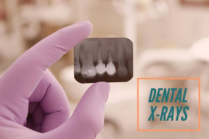 X-rays were discovered in 1895 by Wilhelm Conrad Roentgen who was a Professor at Wuerzburg University in Germany. The first dental X-ray was taken in 1987 when Trophy Radiology in France introduced the world's first intraoral X-rays imaging sensor. #DentalHistory - Dr. Matthew Kubovich | Des Moines Pediatric Dental Center | Des Moines | http://www.dmpdc.com/