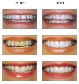 """Veneers – Utah Cosmetic Dentists Serving Riverton, West Jordan, Draper and Salt Lake City, Utah #dental #bridge #cost http://dental.remmont.com/veneers-utah-cosmetic-dentists-serving-riverton-west-jordan-draper-and-salt-lake-city-utah-dental-bridge-cost/  #veneers for teeth # Veneers Many people go through life uncomfortable or embarrassed by their smile. However, new advancements in cosmetic dentistry means that nearly any patient can achieve a perfect """"Hollywood"""" smile—no matter how…"""