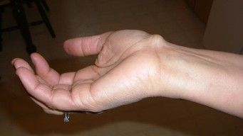 how to treat a ganglion cyst